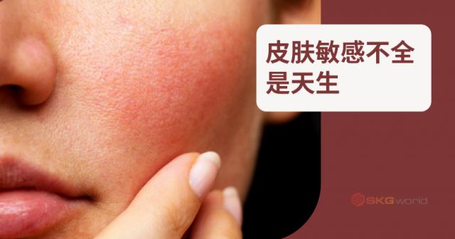 皮肤敏感不全是天生