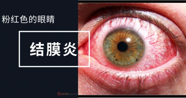 粉红色的眼睛 – 结膜炎