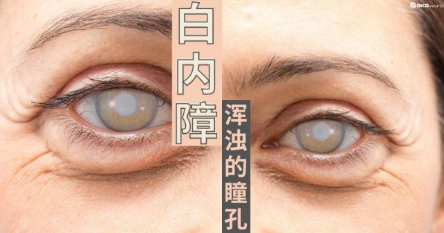 白内障 – 浑浊的瞳孔?