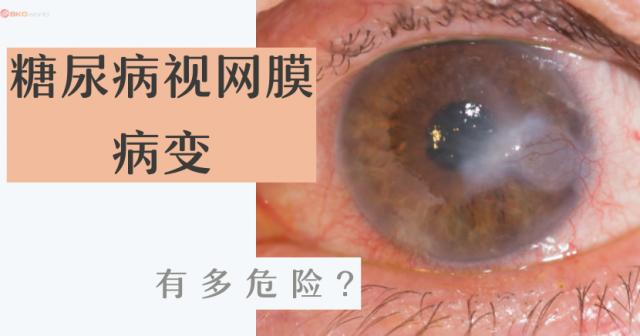 糖尿病视网膜病变 有多危险?