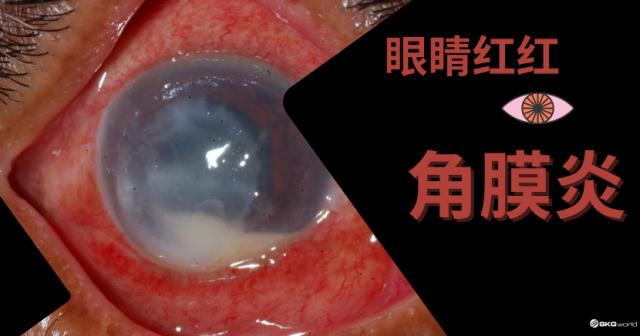 眼睛红红 – 角膜炎